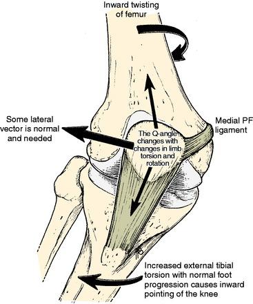 torsione ginocchio